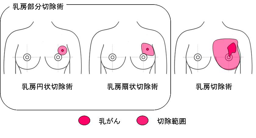 ドレーン 乳がん